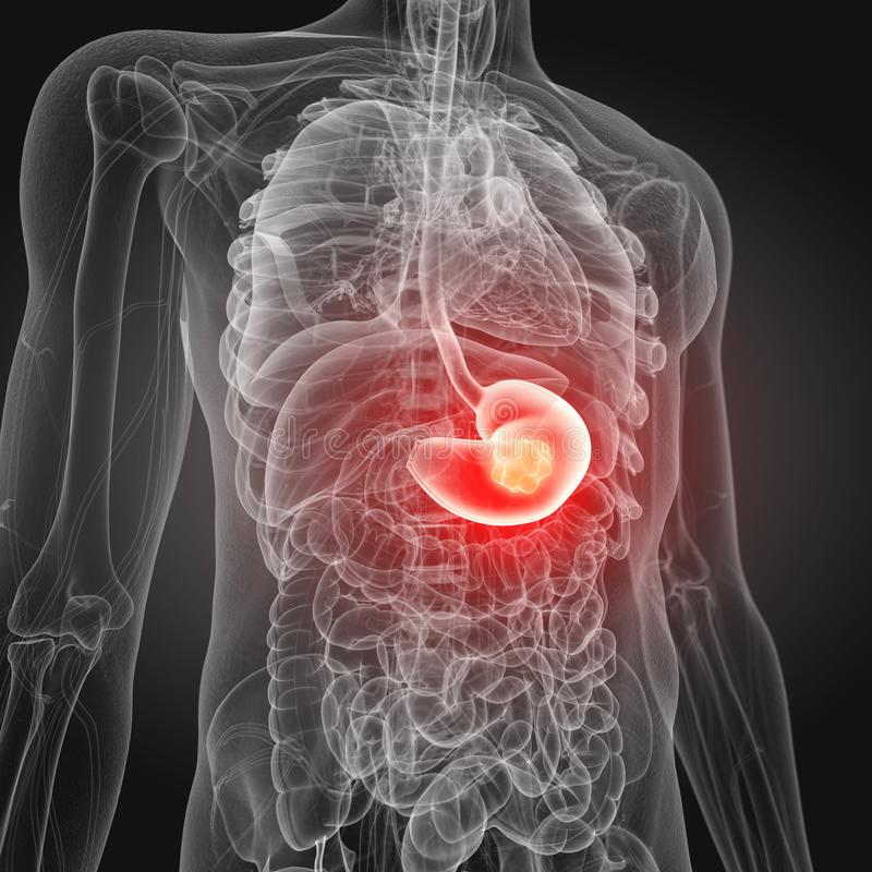 Лечение рака Желудка в Южной Корее