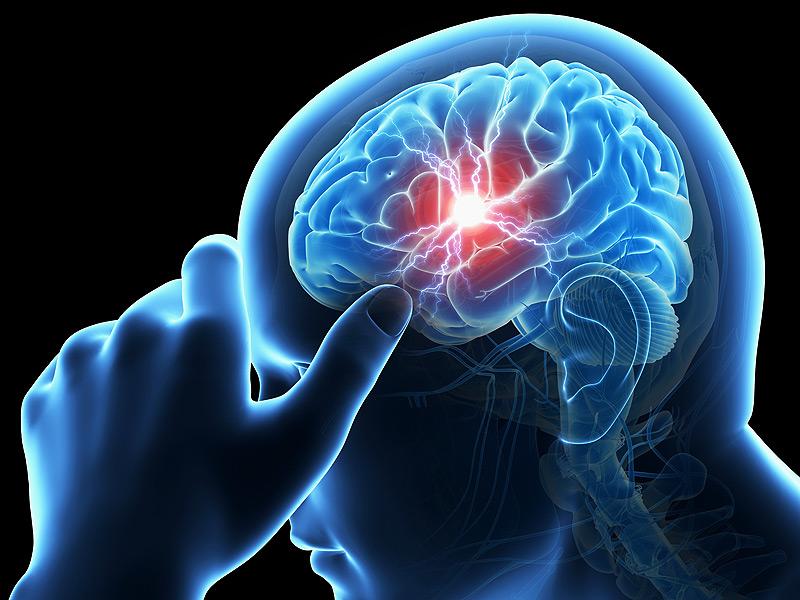 Лечение инсульта головного мозга в Корее