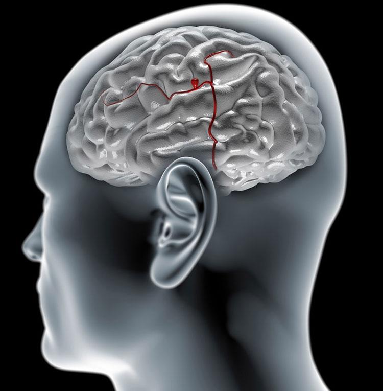 Лечение аневризмы головного мозга в Южной Корее