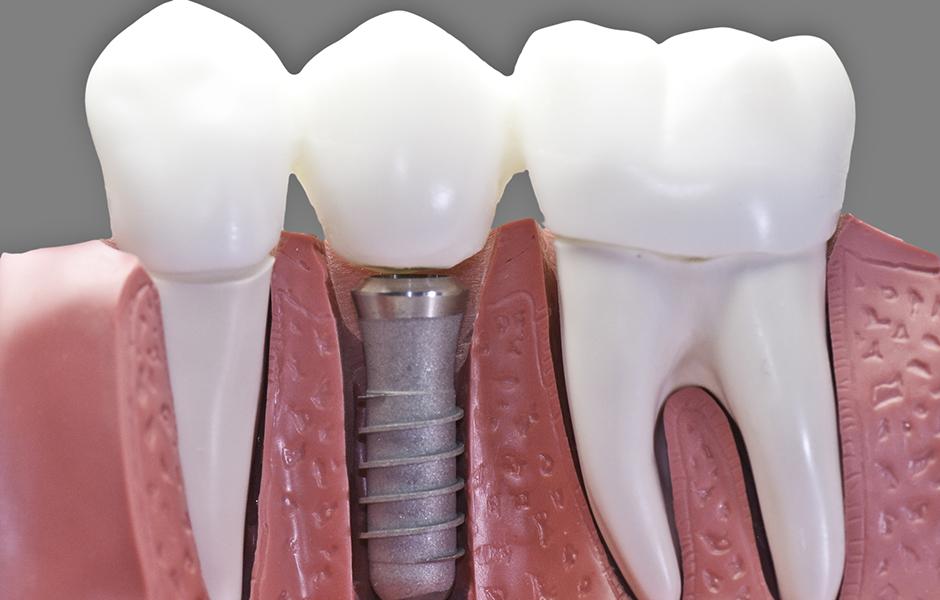 Имплантация зубов в Южной Корее